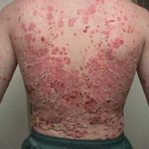 Cure For Psoriasis Through Ayurveda Vitiligolanka Blog