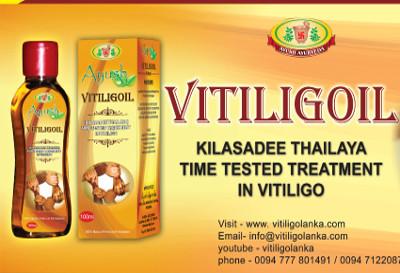 Vitiligolanka: Vitiligo can be fully cured